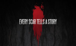 scars-tell-a-story